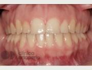 Aparatos de ortodoncia invisibles