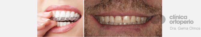 Ortodoncia  con alineadores  transparentes  Invisalign ortoperio