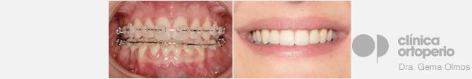 Ortodoncia estética ortoperio
