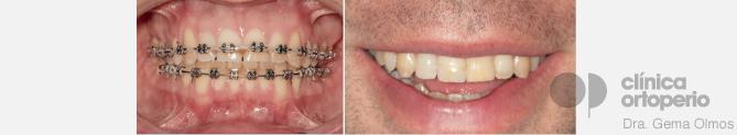 brackets metálicos ortoperio