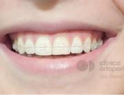 ortodoncia lingual