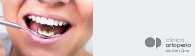 Alguien-ha-llevado-ortodoncia-lingual